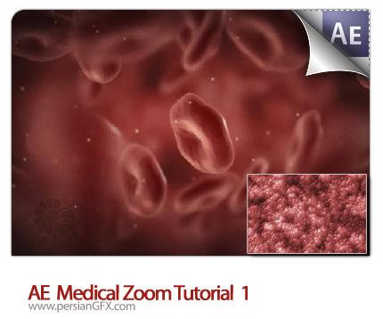 دانلود آموزش افتر افکت بزرگنمایی پزشکی  - AE Medical Zoom Tutorial 01