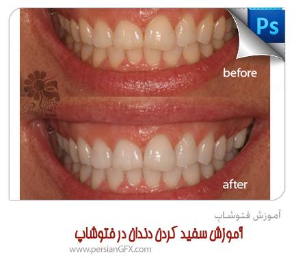آموزش فتوشاپ - آموزش سفید کردن دندان در فتوشاپ