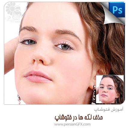 آموزش فتوشاپ - حذف لکه های صورت و پوست در فتوشاپ
