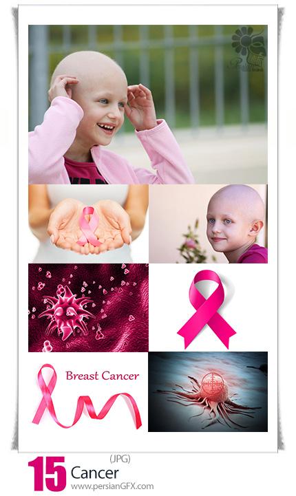 دانلود تصاویر با کیفیت سرطان، نماد سرطان ، سلول سرطانی، کودکان سرطانی و ... - Cancer