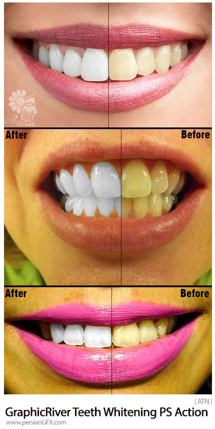 دانلود اکشن فتوشاپ سفید کردن دندان ها از گرافیک ریور - GraphicRiver Teeth Whitening PS Action Photo Effects