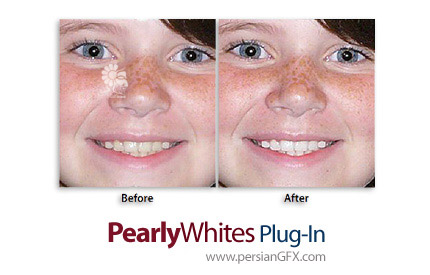 دانلود پلاگین سفید کردن دندان ها به صورت خودکار در فتوشاپ - Imadio PearlyWhites Photoshop Plug-In v3.0.1