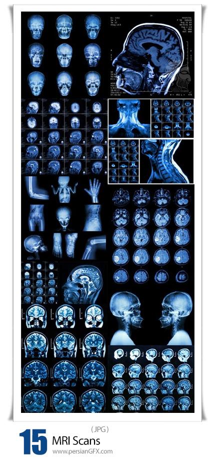 دانلود 15 عکس با کیفیت اسکن ام آر آی - MRI Scans