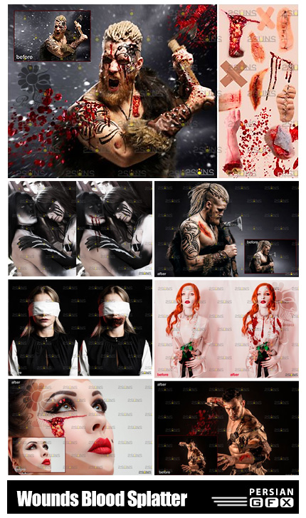 دانلود 30 تصویر پوششی زخم و خون و خراش - Wounds And Scars, Blood Splatter Overlay