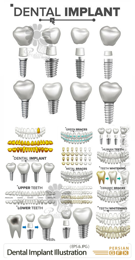 دانلود وکتور المان های داندانپزشکی، دندان و ایمپلنت دندان - Dental Implant Illustration